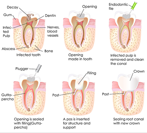 Homestead Root Canal